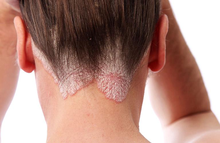 Những bệnh về da đầu thường gặp trong cuộc sống ngày nay