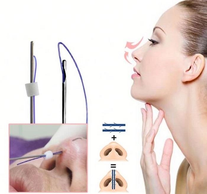 Phẫu thuật sửa mũi hếch