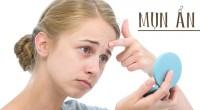 5 cách trị mụn ẩn dưới da hiệu quả