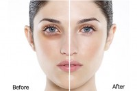 7 cách chữa thăm quầng mắt từ nguyên liệu thiên nhiên