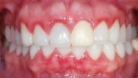 Bọc răng sứ và những điều bạn nên biết  ?