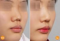 Cách chăm sóc sau khi nâng mũi cao ?