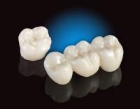 Chi phí làm răng veneer  ?