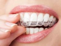 Có nên thay răng sứ hay không?