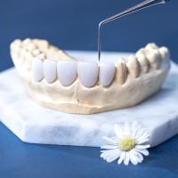 Làm răng sứ thẩm mỹ loại nào đẹp nhất