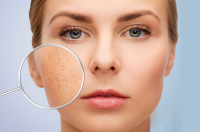 Một vài những phương pháp điều trị sẹo rỗ lâu năm hiệu quả