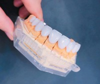 Niềng răng thưa giá bao nhiêu tiền? bảng giá nha khoa sunshine