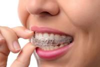 Niềng răng với phương pháp không mắc cài có hiệu quả không?