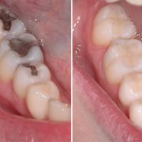Tư vấn nha khoa | chi phí trám răng giá bao nhiêu tiền hiện nay